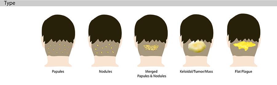 Rash from haircut