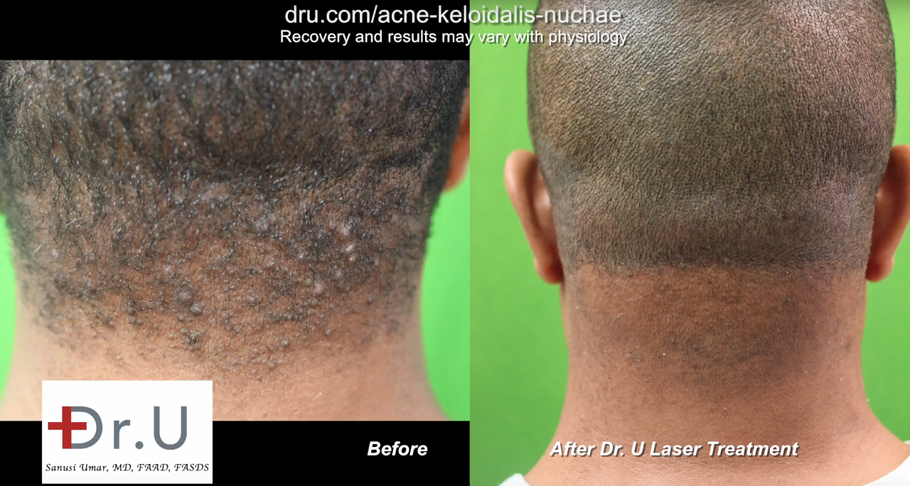 video how to get rid of ingrown hairs on back of head